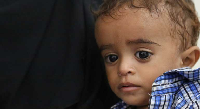 WFP Alarmed At Growing Rates Of Hunger And Malnutrition In War-Torn Yemen