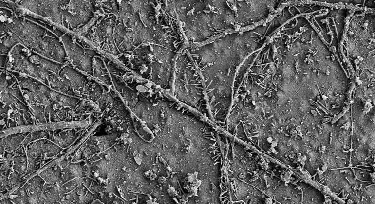 Elektronenmikroskopie-Bild: ETH Zürich / Gruppe Umweltchemie | Nach wenigen Wochen im Boden besiedelten bereits zahlreiche Mikroorganismen die Oberfläche der PBAT-Folie und hatten mit dem biologischen Abbau des Polymers begonnen.