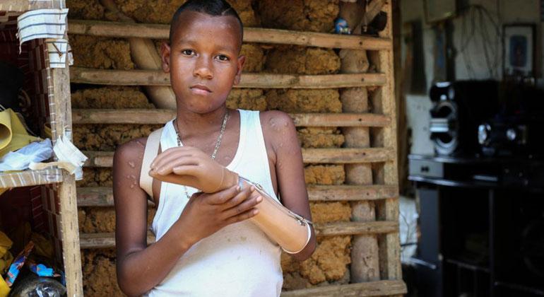 handicap-international.de   J.M. Vargas   Jemerson aus Kolumbien verlor durch einen Blindgänger seine linke Hand.